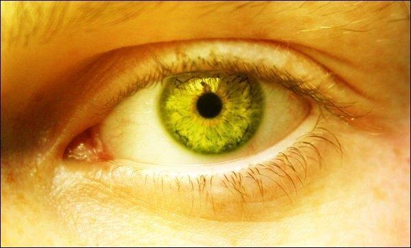 Monsoon illness – Jaundice – seeing yellow, not green