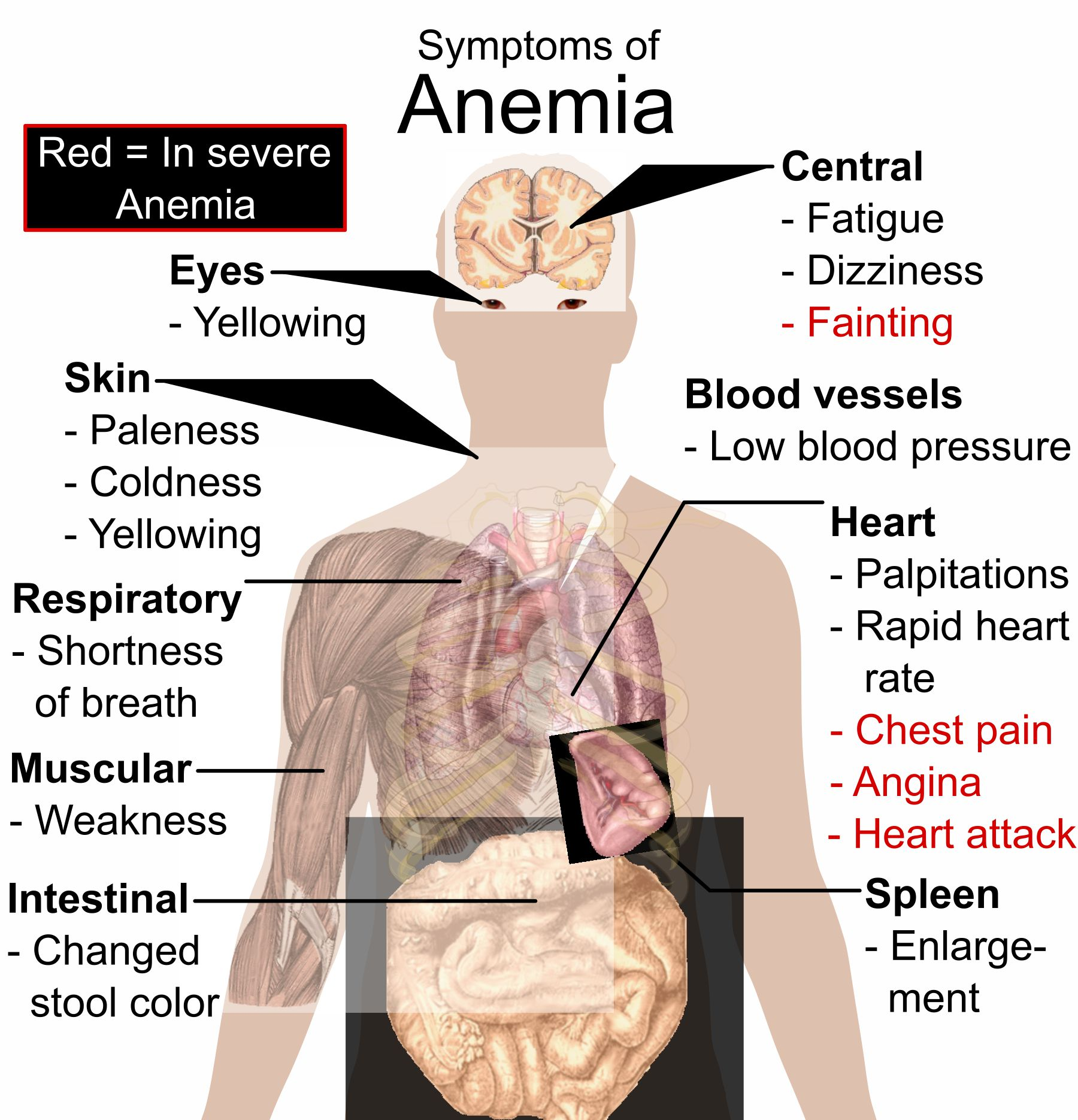Anemia – Causes & Symptoms